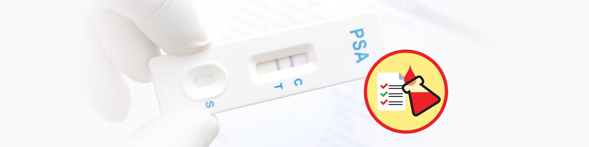 Exame do PSA (Antigénio Específico da Próstata)